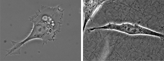 Microscopy of adherent HT-1080 cancer cells