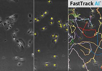 Chemotaxis FastTrack AI Image Analysis