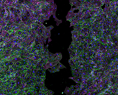Endothelial cells cultured in an ibidi 35mm µ-Dish