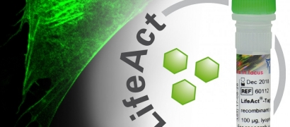 ibidi Product News: LifeAct-TagGFP2 Protein—Immediate F-Actin Visualization in Living and Fixed Cells